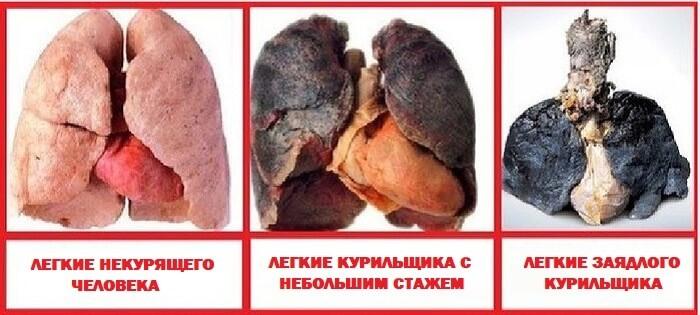 Сравнение легких курильщиков