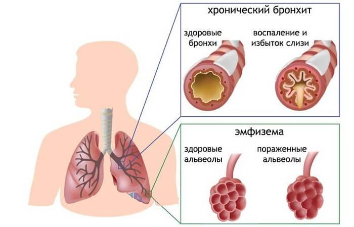 Хроническая обструктивная болезнь