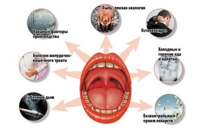 Причины ангины