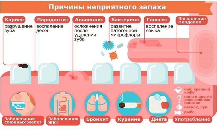 Причины неприятного запаха