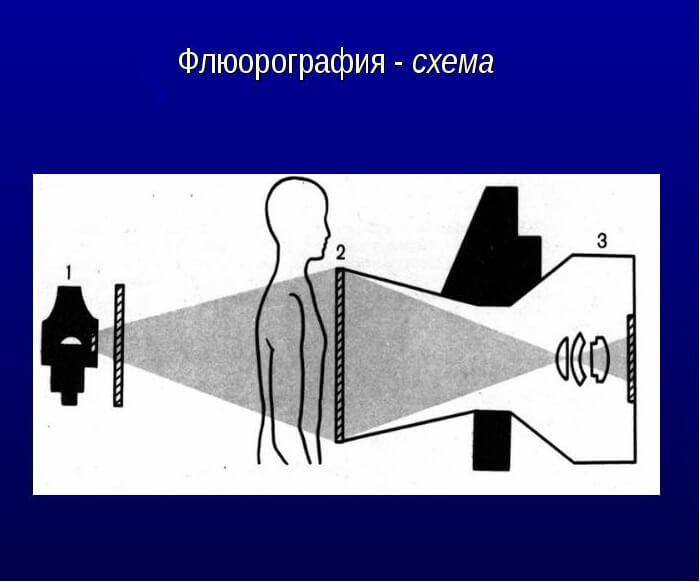 Схема флюорографии