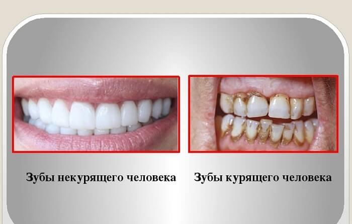 курение после реставрации зубов