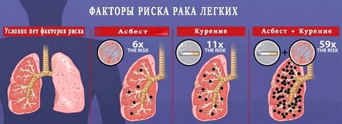 Факторы риска рака легких