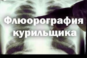 Флюорография курильщика
