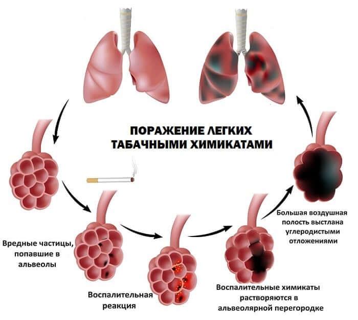 Образование эмфиземы у курильщика