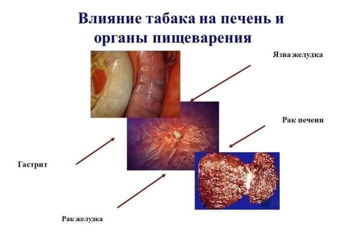 Можно ли курить при гастрите: влияние на желудок и осложнения