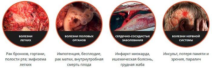 Основные последствия курения
