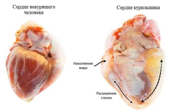 Сердце курящего и некурящего