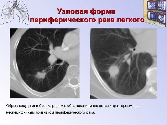 Узловая форма рака