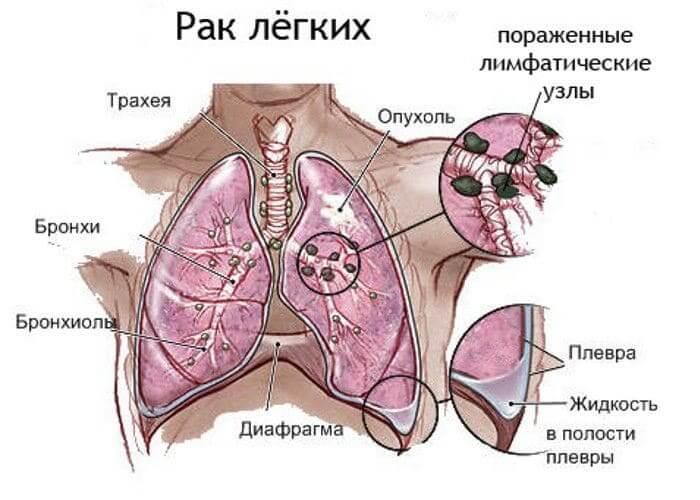 Характеристика рака легких