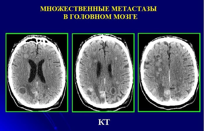 Множественные метастазы в мозгу