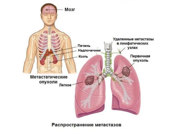 Распространение метастаз организму