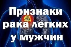 Признаки рака легких у мужчин