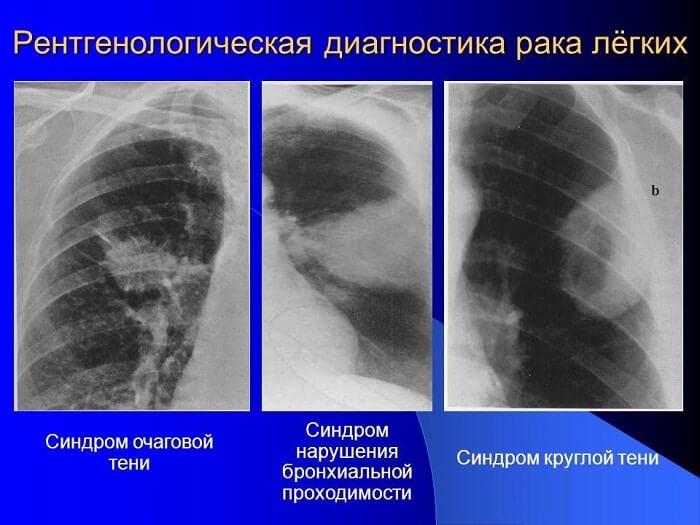 Рентгенологическая диагностика рак