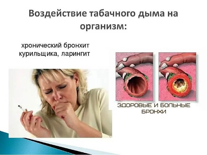 Болезни курильщика