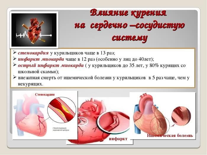 Вред сигарет для сосудов