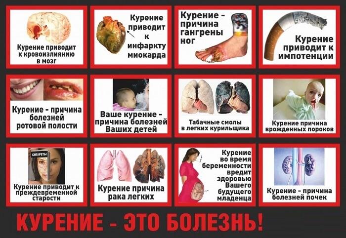 Курение - болезнь