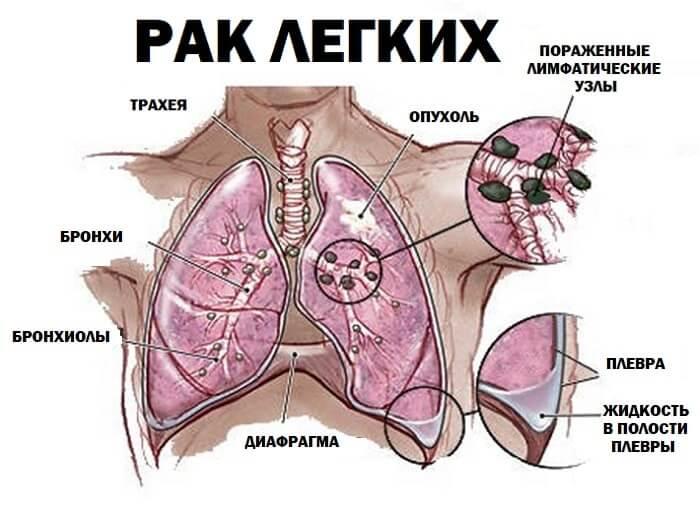 Онкология легких