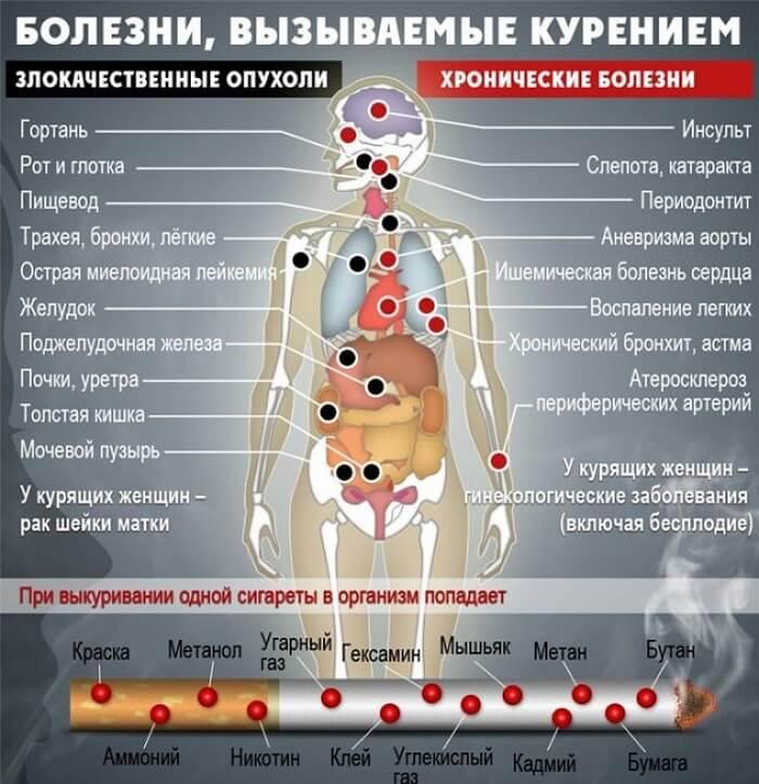 Болезни от влияния табака